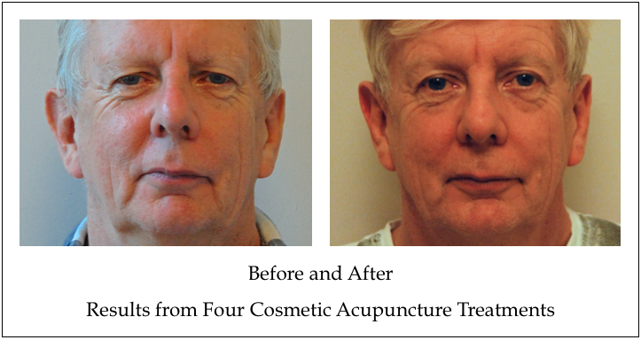 Before and After Cosmetic Acupuncture