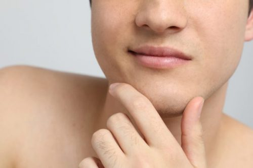 Acne and Acne Scarring Treatment | Cosmetic Acupuncture Brighton