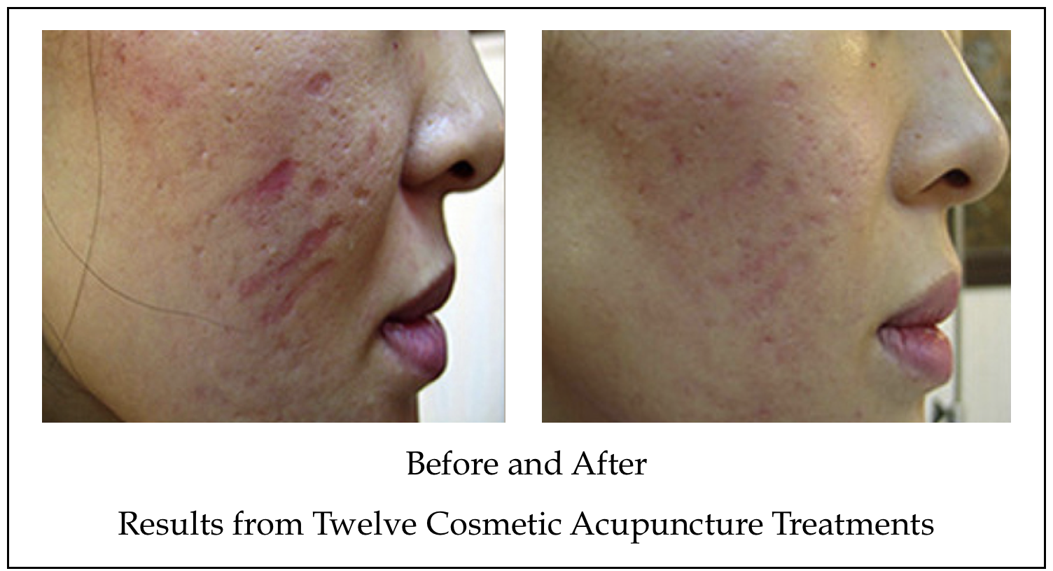 Acupuncture for Scars Before and After | Acne Scars | Brighton