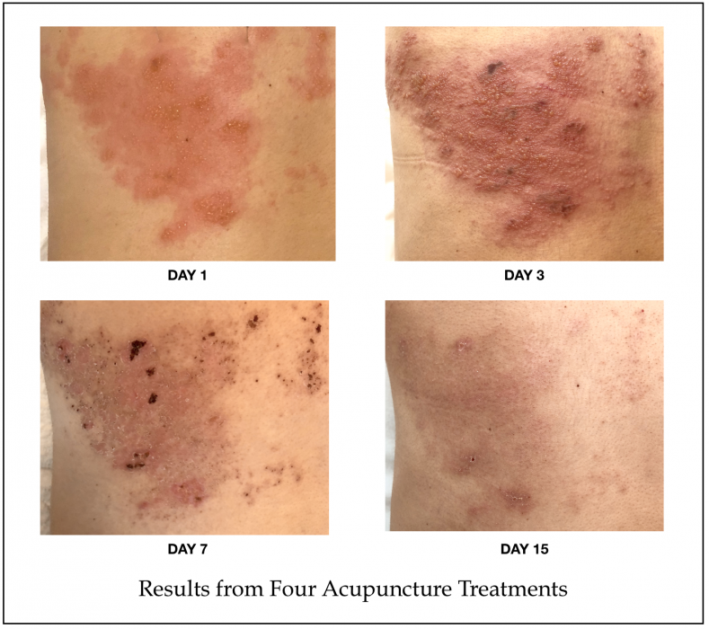 Results from Natural Shingles Treatment