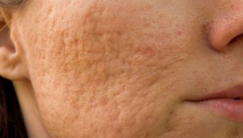 Facial Scarring and Acne Scarring Treatment | Cosmetic Acupuncture Brighton