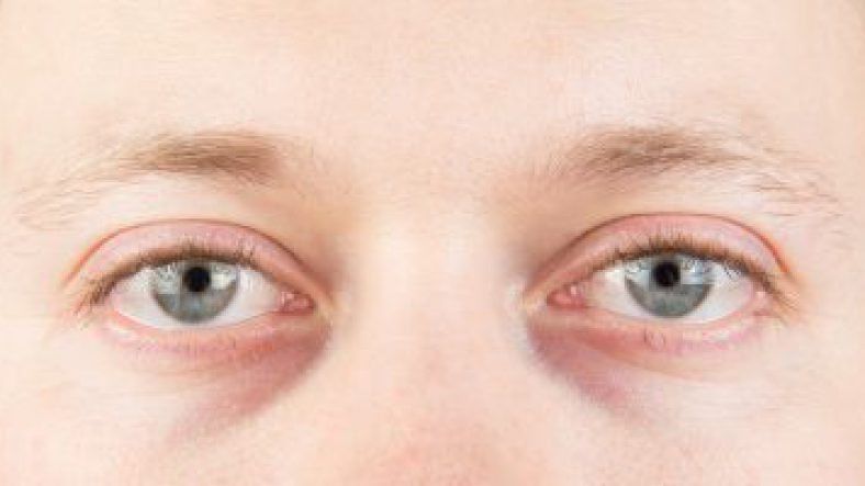 Puffiness or Dark Circles Under the Eyes | Acupuncture in Brighton
