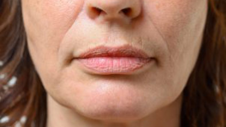 Anti-Ageing Treatment | Cosmetic Acupuncture Brighton