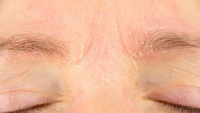 Facial Eczema Treatment | Acupuncture in Brighton