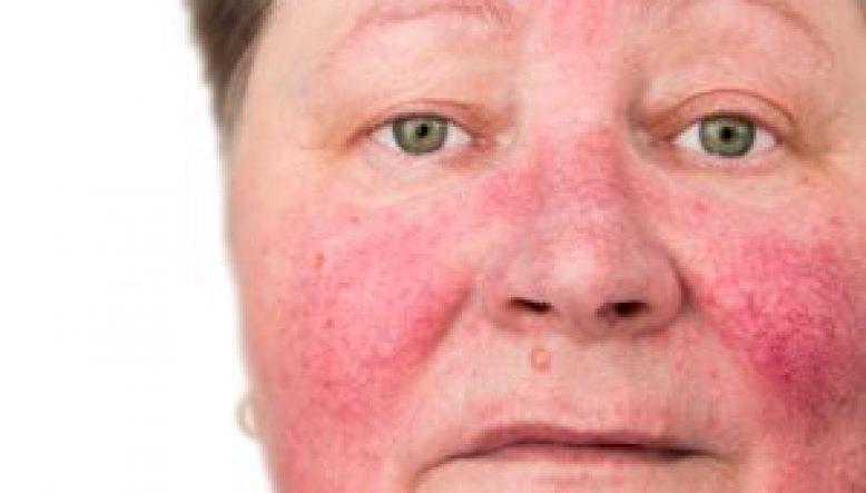 Rosacea Treatment | Cosmetic Acupuncture Brighton